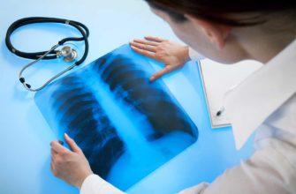 «Рентгенология» на базе среднего медицинского образования — профессиональная переподготовка по всей России на курсах дистанционно для среднего медицинского персонала   ЦППК